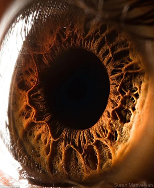 Suren-manvelyan-eye