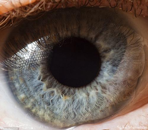 Surenmanvelyan-eye